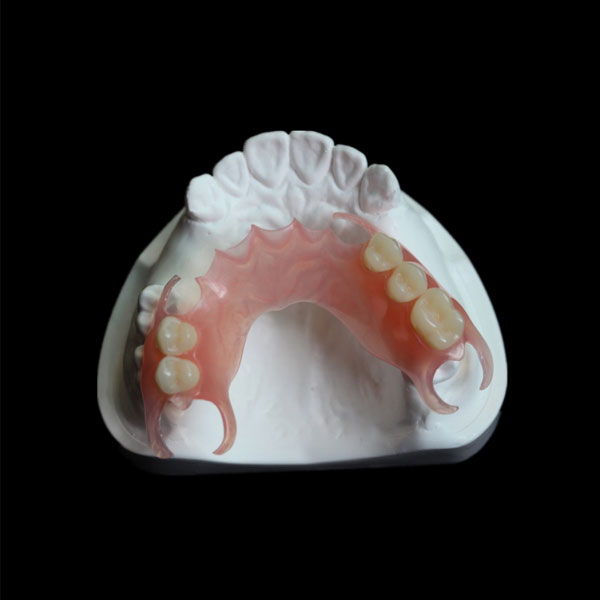 Removable Restorations