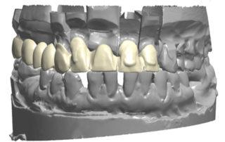 3D-design-zirconia-bridges