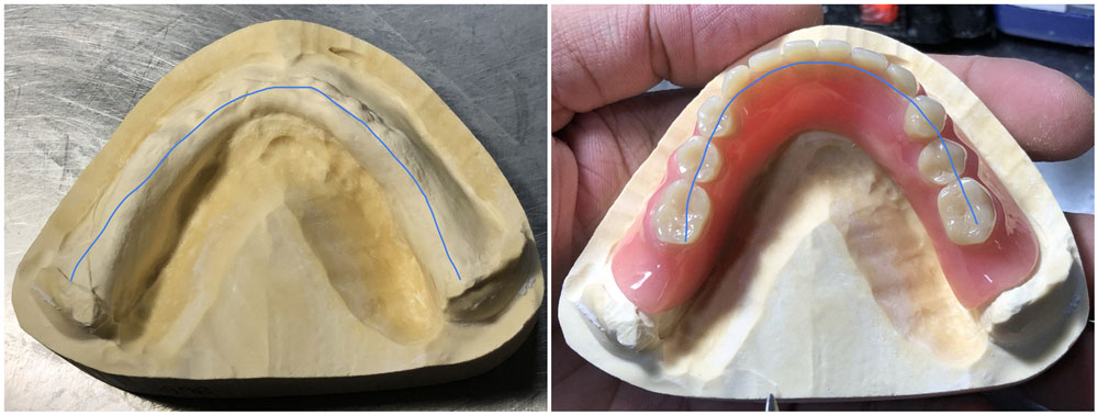 The-position-for-teeth-set-up