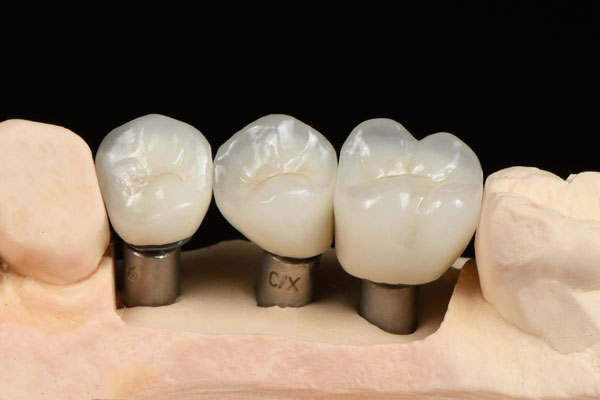 Cement-Retained-Implant-Crowns