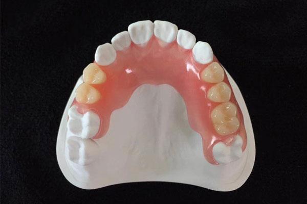 Flexible-Denture