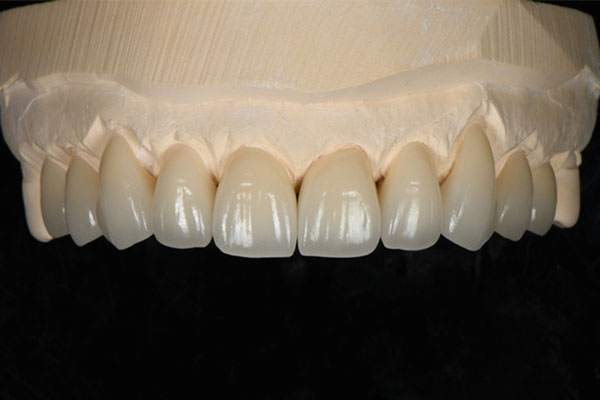 Ceramic Zirconia Crowns