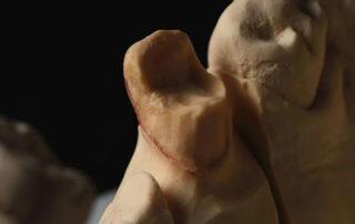 Reworking of cast porcelain crowns