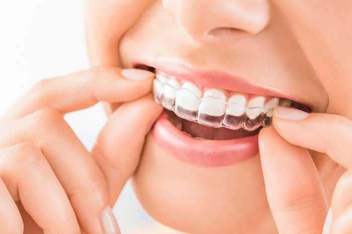 Birth of Clear Teeth Aligners